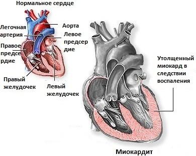Причины заболевания сердца у детей