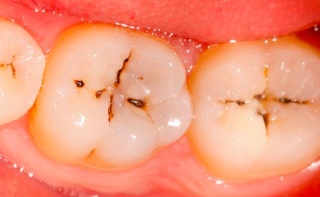 Как вылечить кариес зубов
