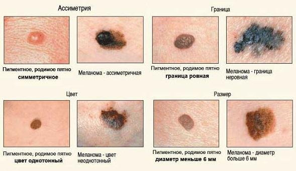 Симптомы меланомы