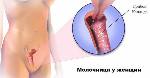 Болезнь молочницей