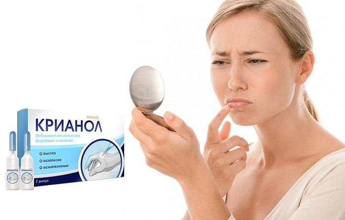 Крианол от папиллом и бородавок: отличная альтернатива удаления образований лазером или жидким азотом!