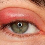 Как быстро и эффективно вылечить ячмень на глазу?