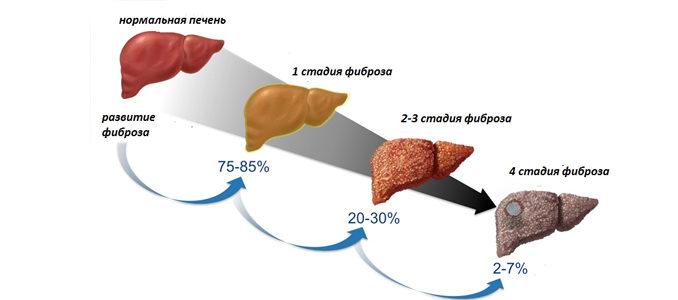 Фиброз печени: что это такое и как лечить болезнь?